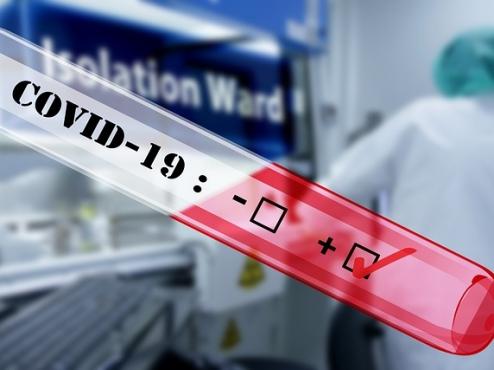 Ilustrativna fotografija pozitivnog testa na COVID-19